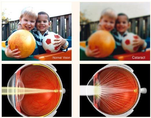 Diabetic and Hypertension Eye Exams 2