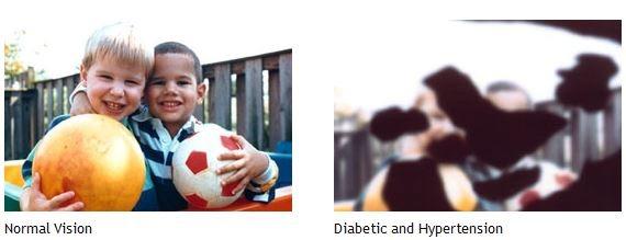 Diabetic and Hypertension Eye Exams